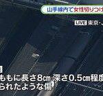JR山手線・大崎駅で女性切り付け事件…傷デカすぎる…(画像あり)