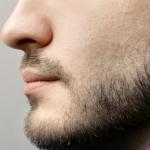 【衝撃】髭のレーザー脱毛、2年通った結果wwwwwww