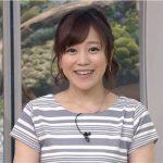 【悲報】江藤愛アナが骨折の怪我…その原因が…(画像あり)