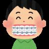 【衝撃】すきっ歯俺、輪ゴムで治す強行作戦wwwww(※画像あり)